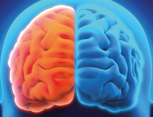 Aneurismas Cerebrais: O que são e quais os tratamentos?